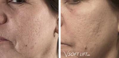 VSoft acne2