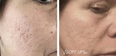 VSoft acne